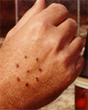 Alien Abduction Body Marks Circle of Dots on hand