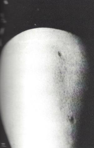 Et Alien Abduction Body Marks